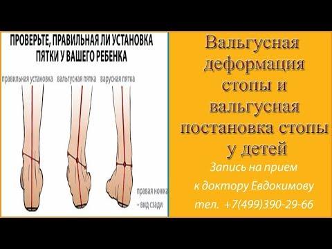 Остеопатия в Киеве. Остеопат в Киеве. Центр остеопатии