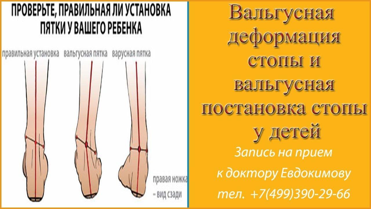 74379098b Вальгусная деформация стопы у детей и взрослых - массаж, лечение и  операция: отзывы