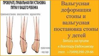 Вальгусная деформация стопы у детей. Отличия вальгусной деформации от вальгусной постановки стоп