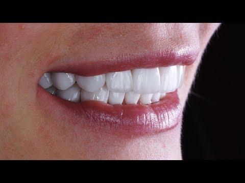 Что такое виниры для зубов? Накладки на зубы - виниры