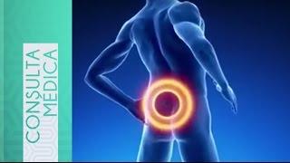 Hernia Discal, causas, síntomas y recomendaciones de esta aflicción que afecta a muchos.