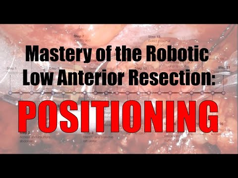Robotic Low Anterior Resection Patient Positioning and Room