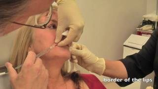 cynthia-lips-injection-juvederm