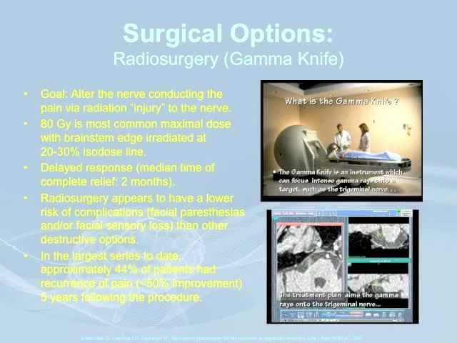 Trigeminal Neuralgia: Surgical Options