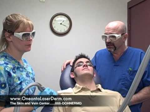 Unibrow Laser Hair Removal
