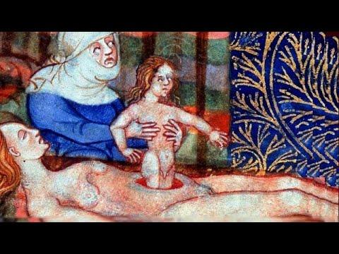 Первый период родов, раскрытие шейки матки, излитие вод, обезболивание©The first stage of childbirth