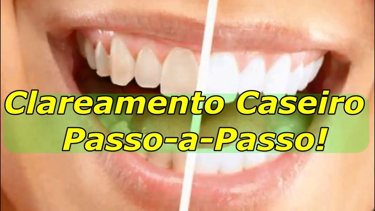 Clareamento Dental Com Moldeira Passo A Passo Youtube