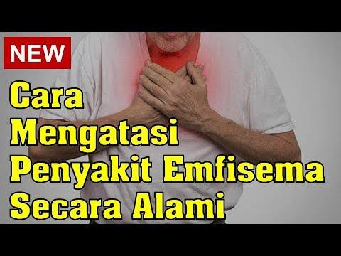 cara-mengatasi-penyakit-emfisema-secara-alami