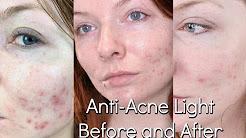 hqdefault - Reviews Of Blu-u Acne Treatment