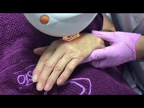 Rejuvenecimiento de manos con láser IPL