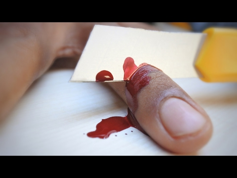 Thumbnail: Cutting Finger Magic Trick That You Can Do