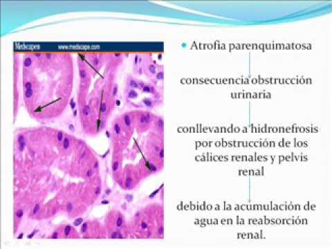 El tratamiento de los espasmos de los vasos sheynogo del departamento