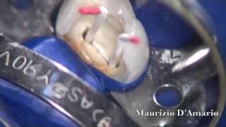 Terapia endodontica premolare