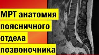 видео МРТ поясничного отдела позвоночника