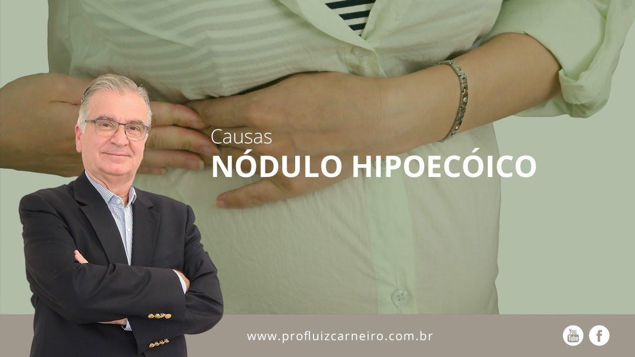 que es nodulo hipoecogénico en la prostata