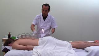 Fire Cupping Methods Used in Chinese Hospitals