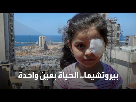 قصة مؤلمة لطفلة لبنانية فقدت إحدى عينيها بانفجار بيروت