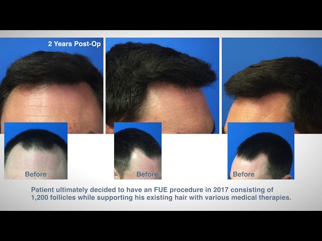 FUE Hair Transplant Case Study - Hartford, Connecticut