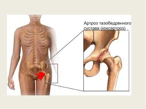 Упражнения при коксартрозе тазобедренного сустава. - YouTube