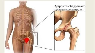 Упражнения при коксартрозе тазобедренного сустава.