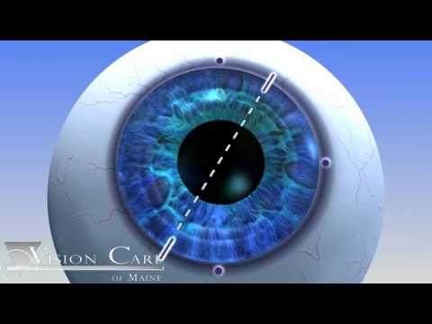 Alcon Toric Lens