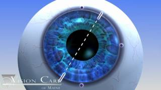 Alcon Toric Lens at Vision Care of Maine