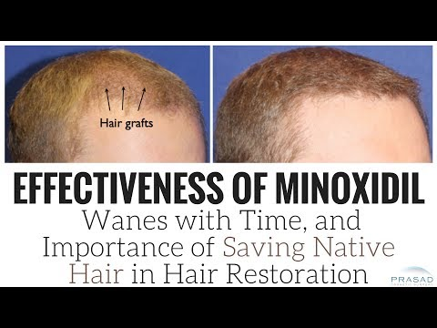 How Effects of Minoxidil Wane Over Time, and Importance of Saving Native Hair in Hair Transplants