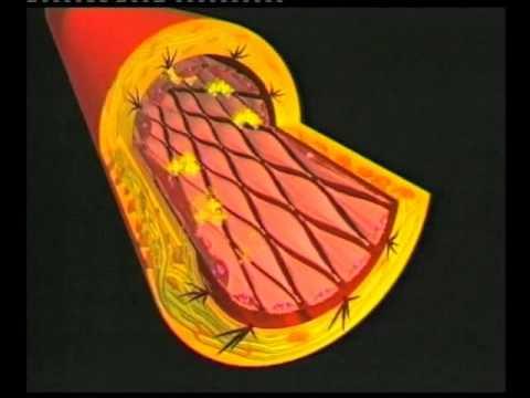 Instructional Video - Cardiovascular disease