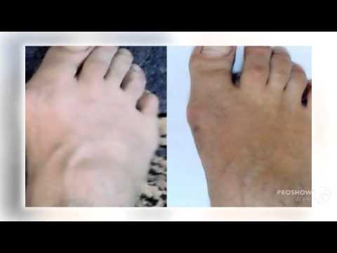 Болят стопы ног, опухают стопы, что делать?