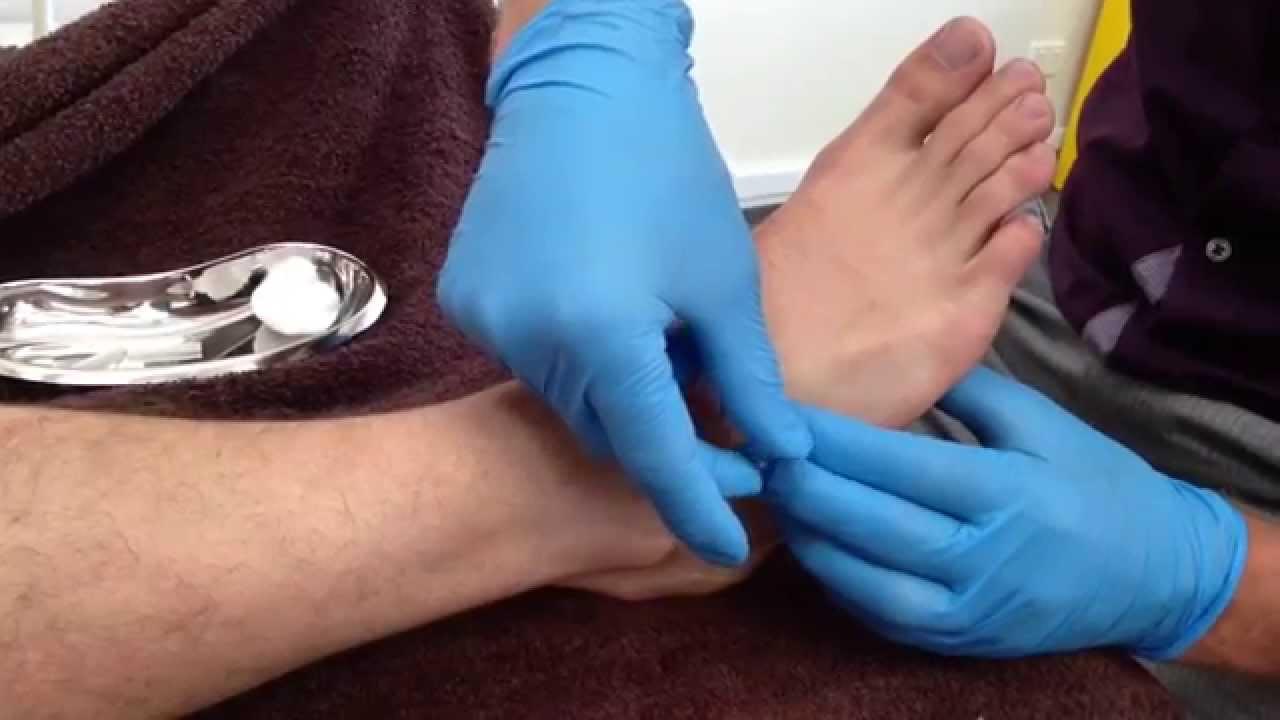 Dry Needling Extensor Hallucis Digitorum Brevis Youtube