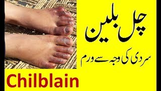 Chilblains on Toes || Treatment