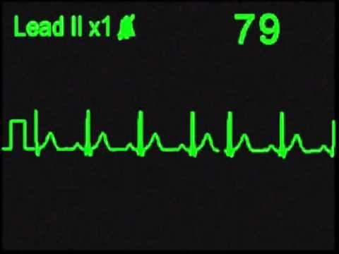 Normal Sinus Rhythm - NSR - ECG Simulator - Arrhythmia Simulator