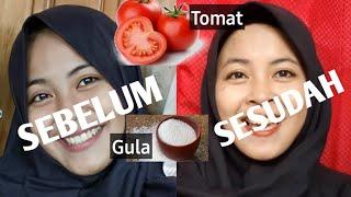 Cara Mengatasi Wajah Belang Kusam Dengan Masker Tomat Dan Gula Youtube