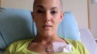 RCHOP Chemo