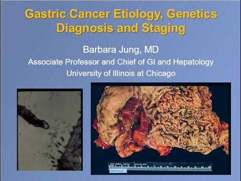 Gastric cancer pathology outlines, Gastric cancer etiology