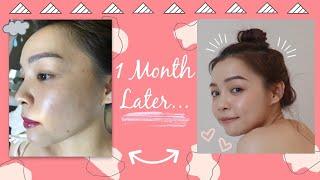 🤦♀️ 1 Tháng Lấy Lại Làn Da ❤️ My Skin Transformation ❤️ TrinhPham
