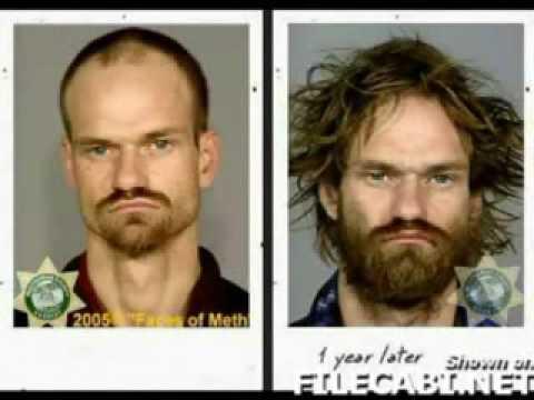 do drugs make you ugly