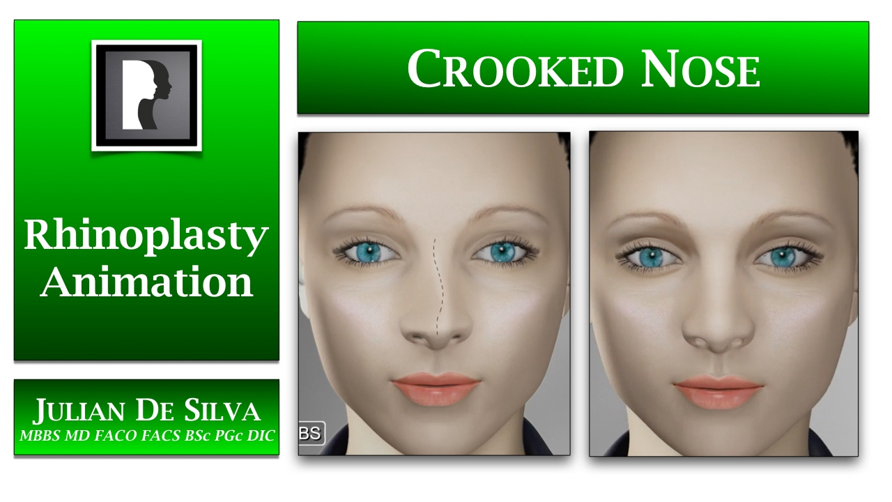 Rhinoplasty Animation - How can a Crooked or asymmetrical nose be  straightened?
