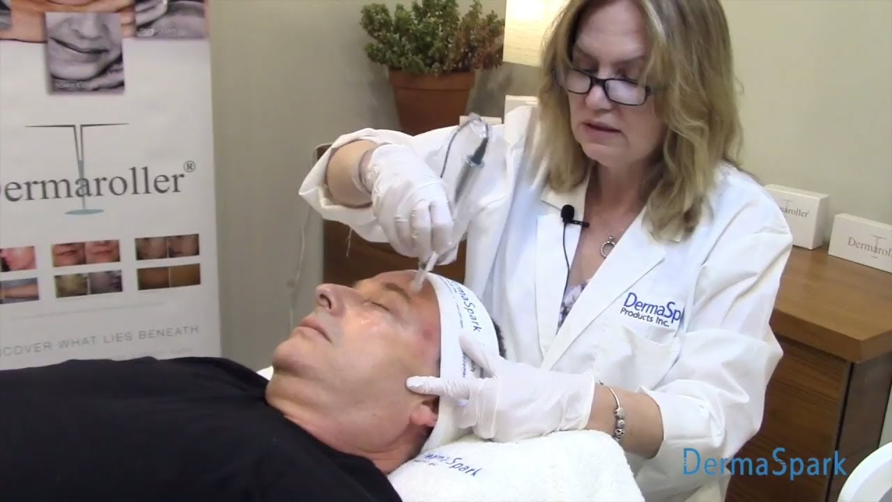Microneedling formation