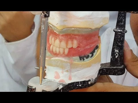 Setting Anterior upper and lower teeth - MUST