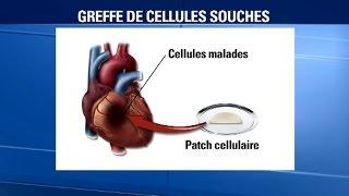 Le coeur d'une patiente réparé avec un patch de cellules cardiaques dérivées de cellules souches