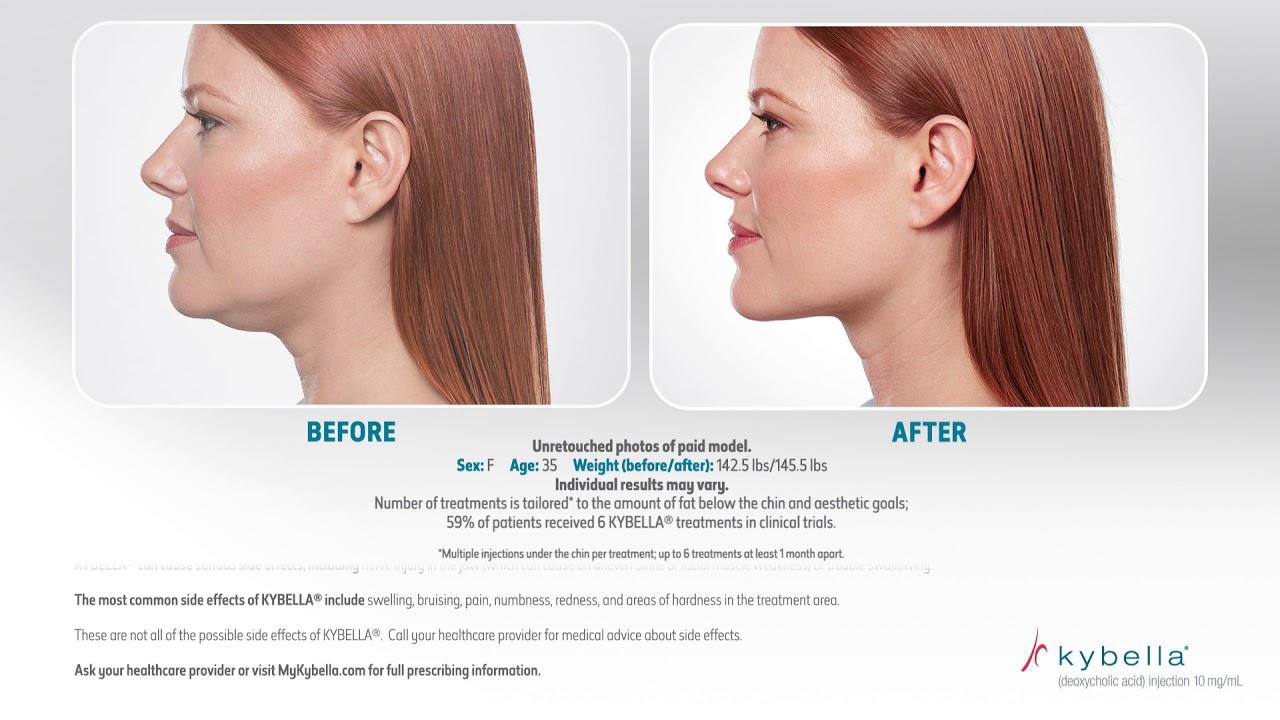 Videos | Long Beach | Patient Preferred Dermatology