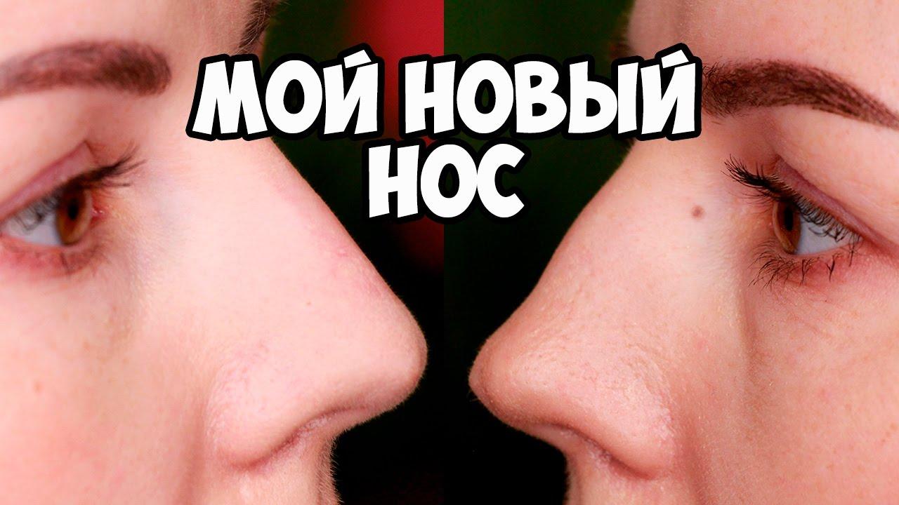 Стоимость пластической операции на носу