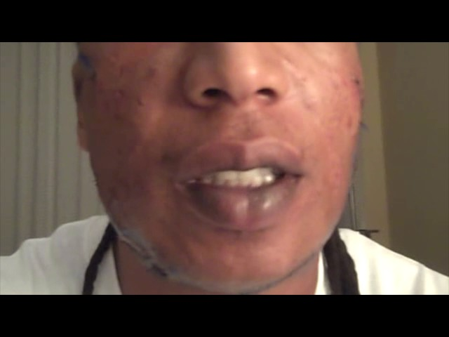 Keloid Recovery Video Following Surgery & Radiation in Dallas, Texas