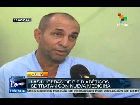 Cuba creates powerful medicine against diabetic foot ulcers