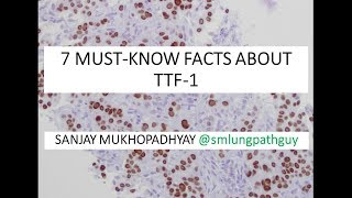 7 must-know facts about TTF -1