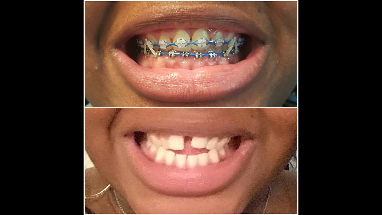 Braces Update 15 Months Youtube
