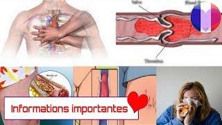 Six signes que vous avez un caillot de sang
