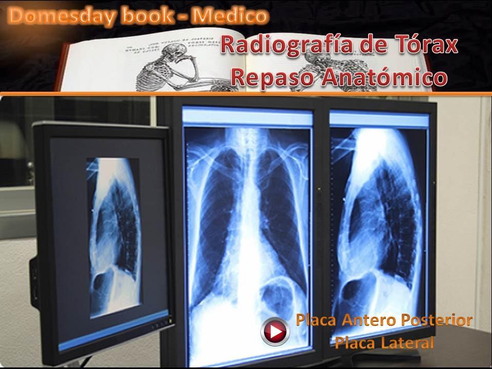 Radiografía de Tórax Repaso Anatómico - YouTube