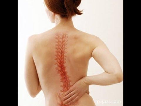 Сколиоз после массажа болит спина